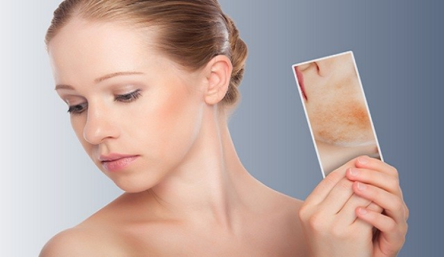 Get-Nice-Skin How to Get Nice Skin without Using Makeup