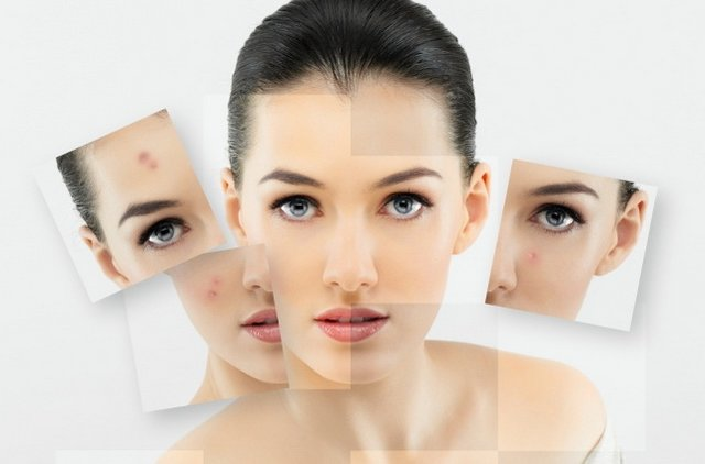 Get-rid-of-acne Homemade tips to get rid of acne
