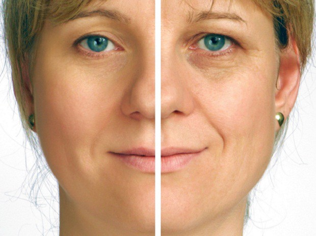How-to-Have-Wrinkle-Free-Skin How to Have Wrinkle Free Skin