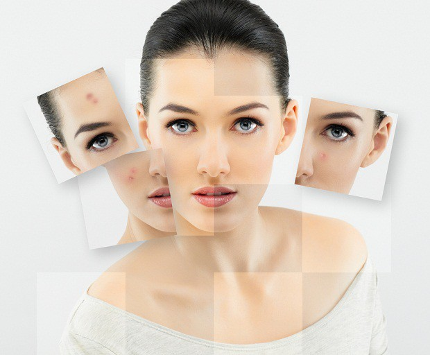 How-to-Reduce-Age-Spots-and-Discoloration How to Reduce Age Spots and Discoloration