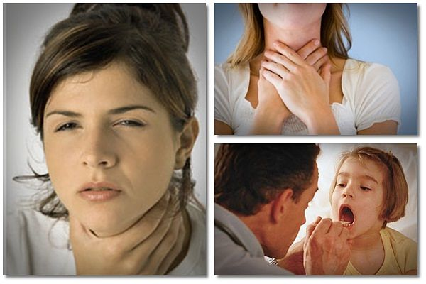 Natural-Remedy-for-Sore-Throat Natural Remedy for Sore Throat