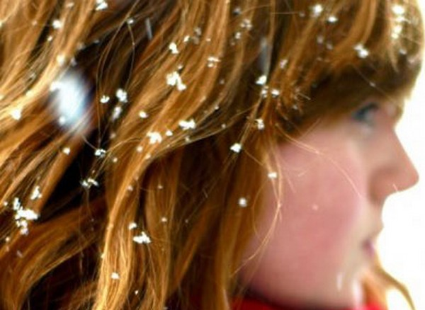 Natural-remedies-for-dandruff Natural remedies for clearing off dandruff