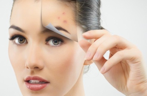 Remove-Pimples-Naturally Ways to Remove Pimples Naturally at home