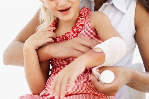 Minor-Burns Effective Home Remedies for Minor Burns