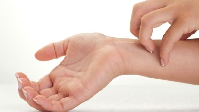 Skin-Allergies-and-Itching Home Remedies For Skin Allergies and Itching