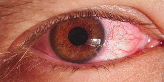 home-remedies-for-pink-eye Treatment and Home Remedies for Pinkeye