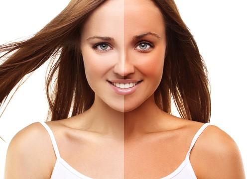 suntanremoval Effective Home Remedies to cure Sunburn