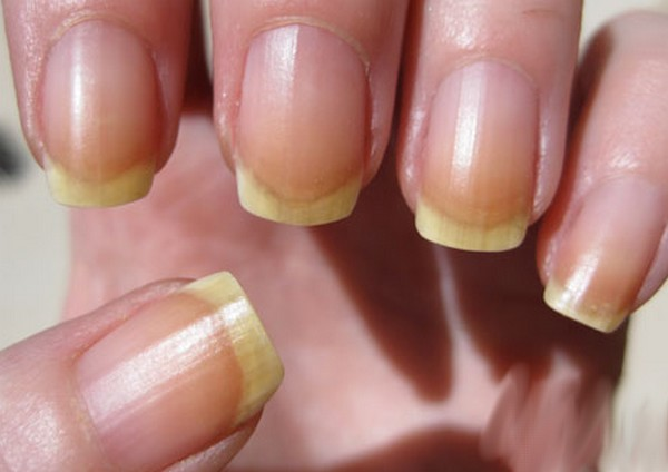 Home-Remedies-for-Yellow-Nails Home Remedies to treat Yellow Nails