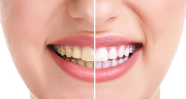 Home-Remedies-for-Yellow-Teeth Home Remedies to Remove Yellowness From Teeth